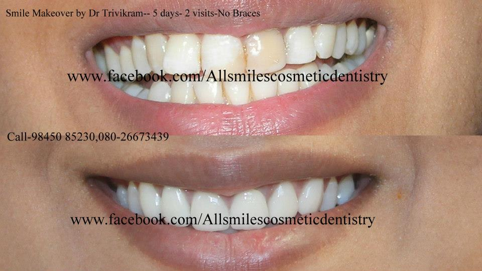Instant Teeth Whitening Teeth Whitening Treatment Bangalore