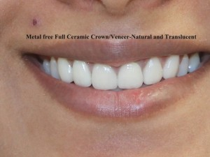 Metal Free Full Ceramic Crown
