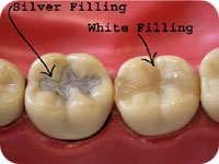 Silver filling in tooth