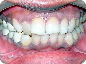 Crowded and Proclined Teeth