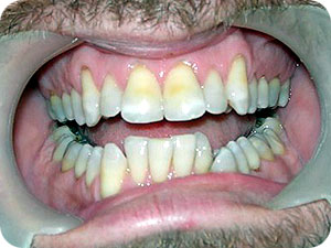 Proclined Teeth With Deepbite