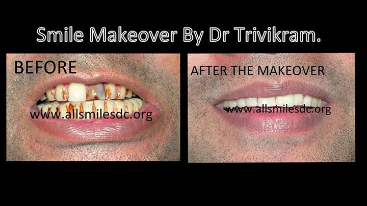 Teeth Whitening Treatment Cost Bangalore Teeth Bleaching In India