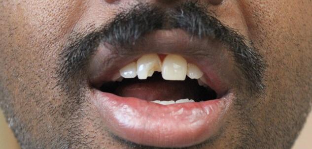 Dental Veneers | Treatment for Fractured Teeth Bangalore | India
