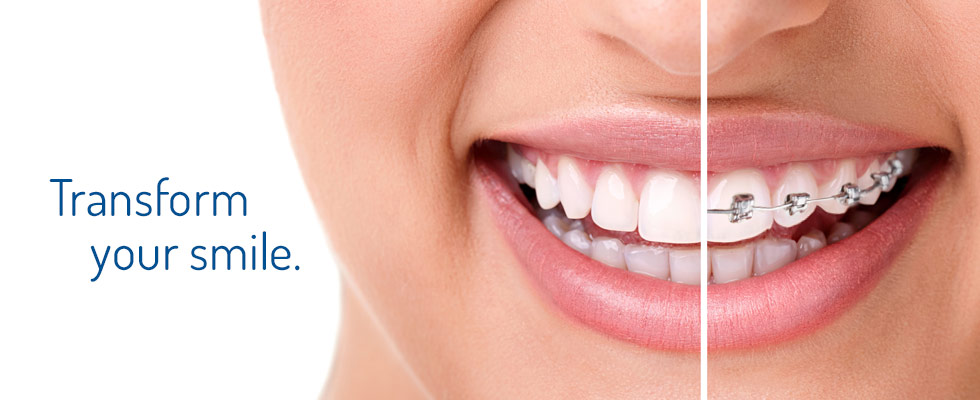 orthodontic-treatment-bangalore