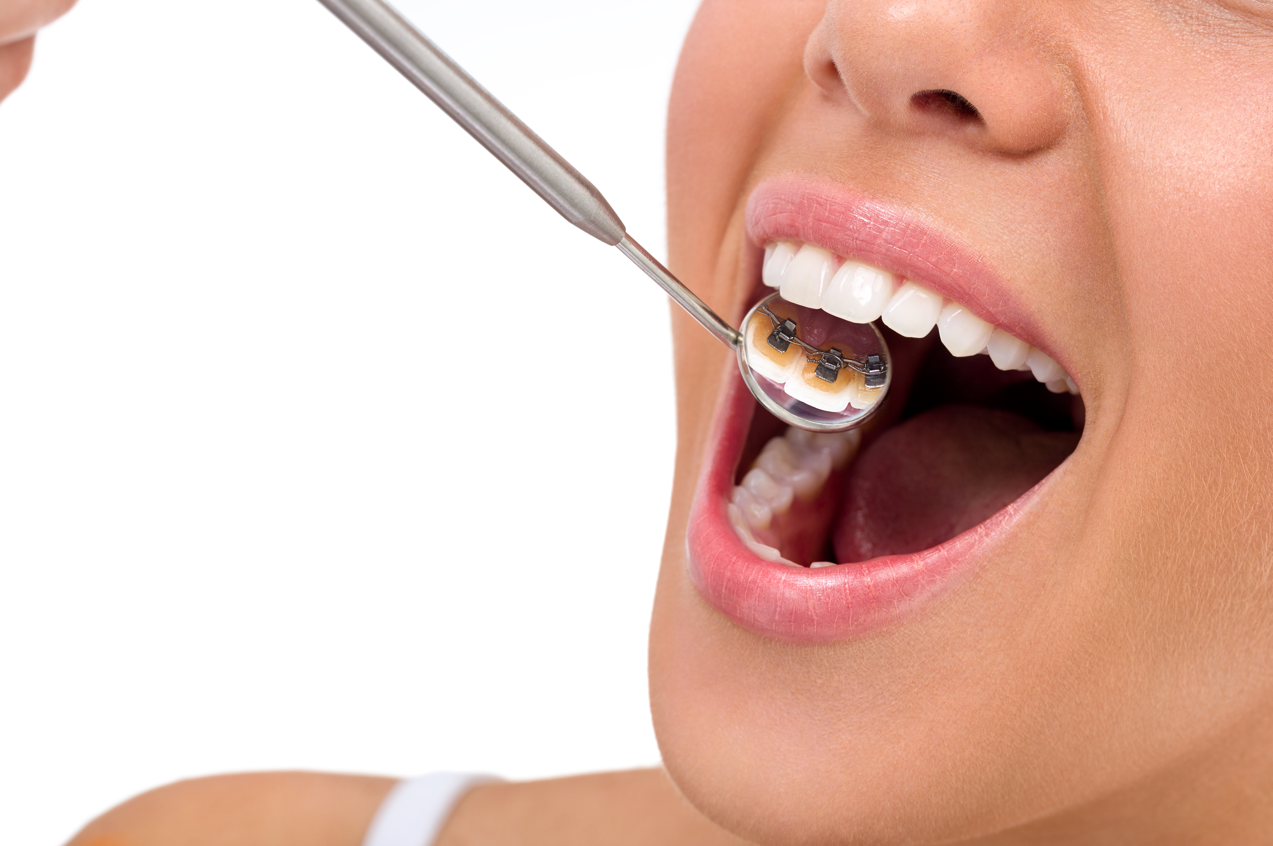 lingual-braces-in-bangalore