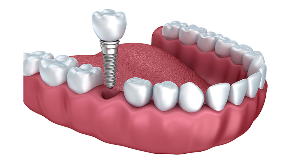 Best Dental Implant clinic in banglore