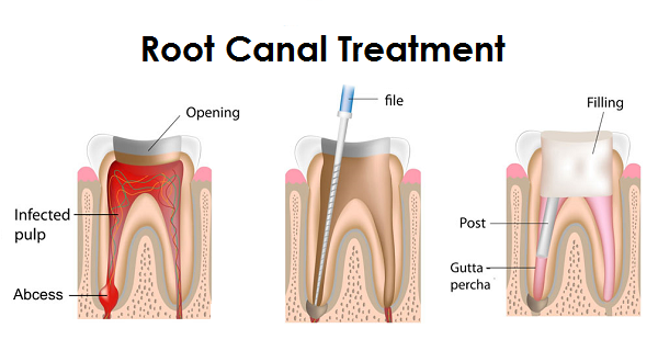 Root Canal Treatment Cost Bangalore