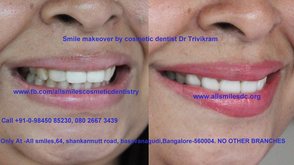 tooth discoloration treatment india