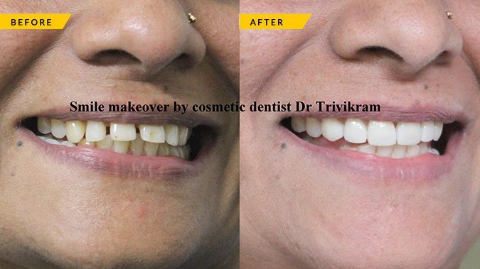 Best Dental Clinic Bangalore | Smile Makeover in India