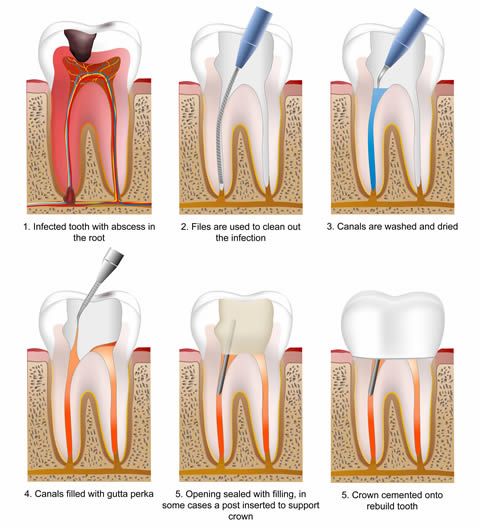 root canal treatment bangalore